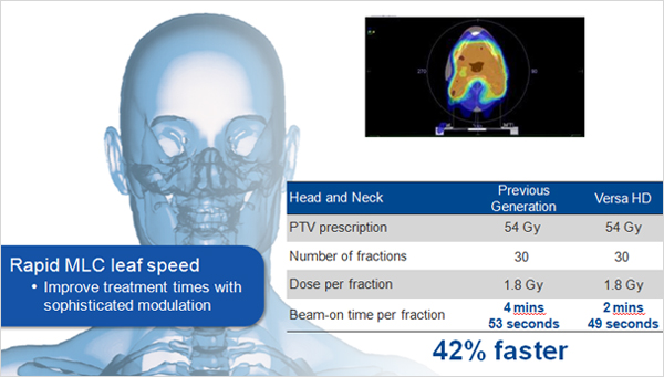 Head and Neck Case - Rapid MLC leaf speed Improve treatment times with sophistcated modulation 42% faster