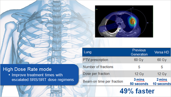 Lung Case - High Dose Rate mode Impove treatment tiomes with escalated SRS SRT dose regimens 49% faster